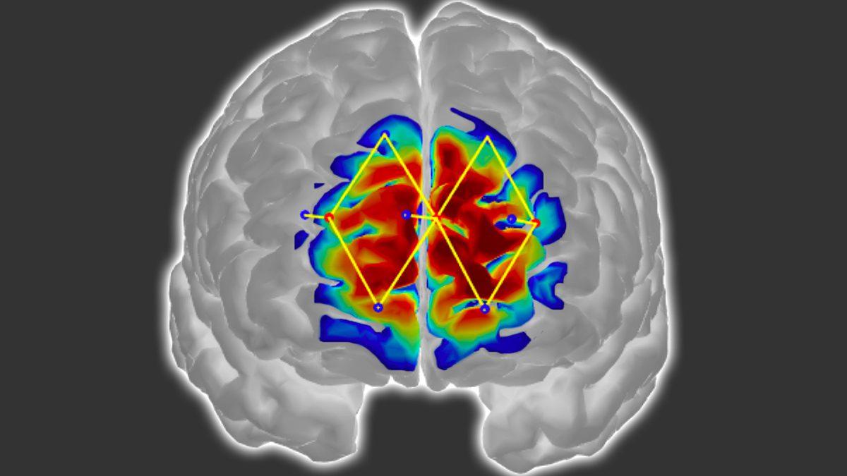 Detceting Patient's Pain Through Brain Activity