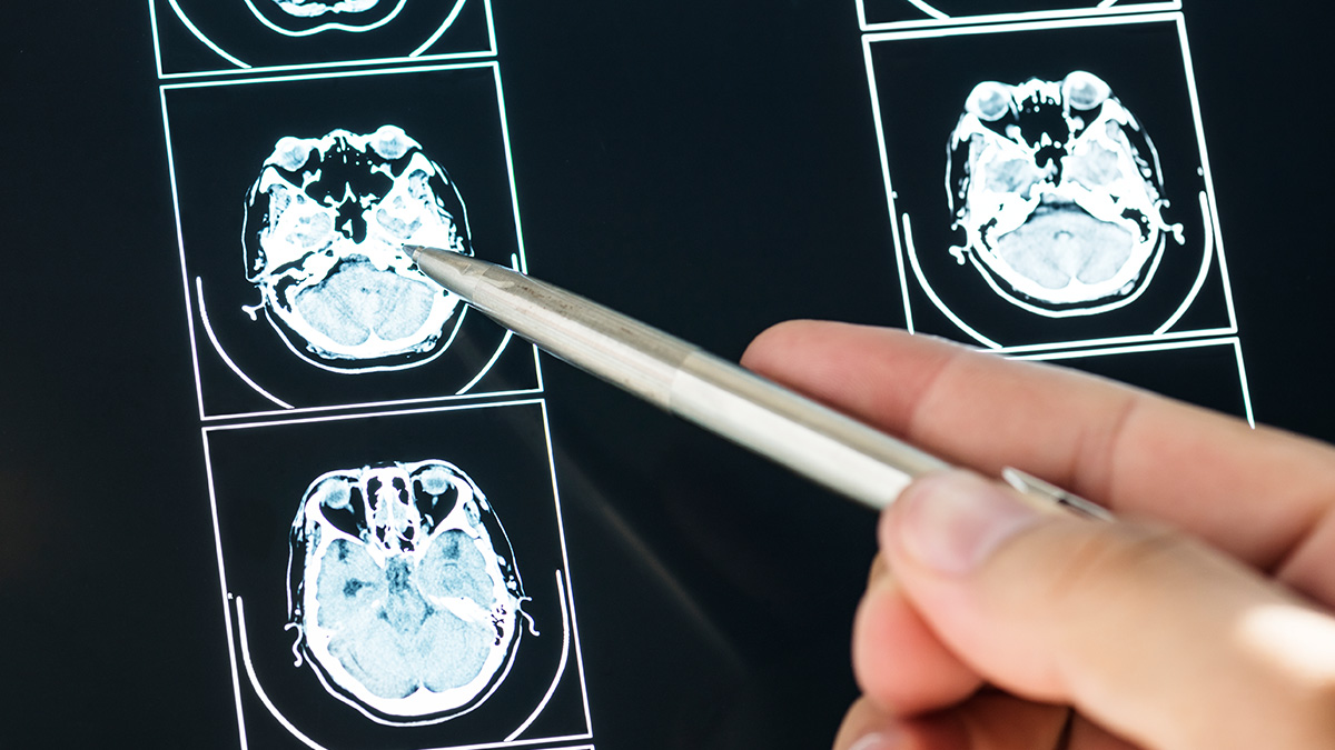 Scientists Research On Brains