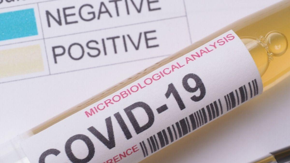 COVID-19 Test Negative Positive